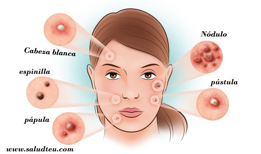 11 diferentes tipos de acné y cómo identificarlos?