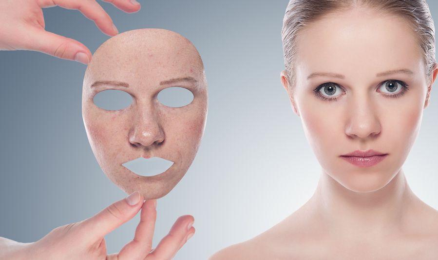 deshacerse del acné rápido