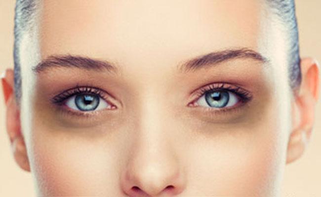 Círculos oscuros bajo los ojos