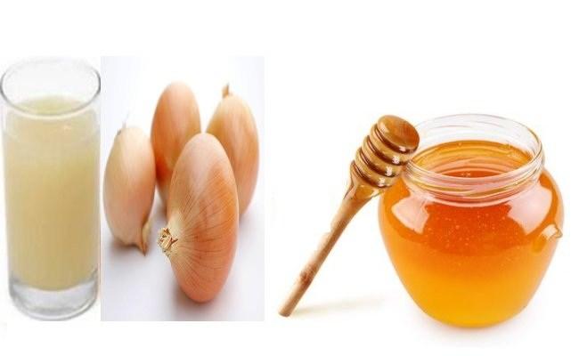 Cebolla jugo con miel