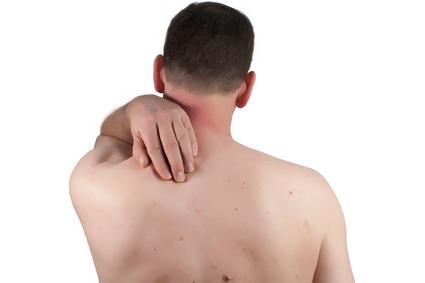 Deshacerse de los puntos de la edad en la cara, piernas, brazos, espalda, manos