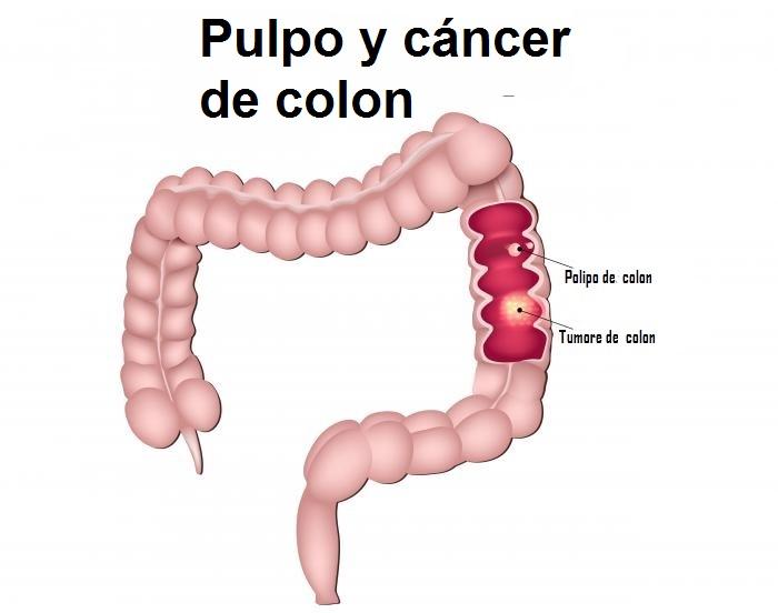 Pulpo y cáncer de colon