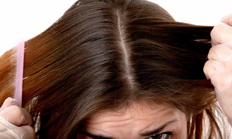 Remedios caseros para el cuero cabelludo seco