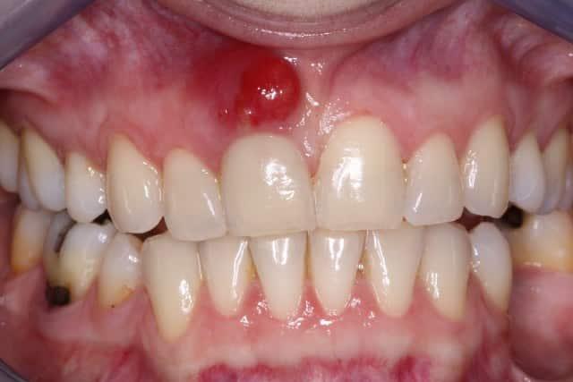Remedios caseros para el diente Abscessed