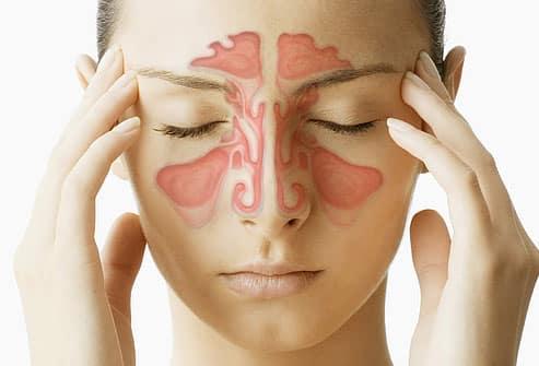 Remedios caseros para la relevación de la presión de la sinusitis