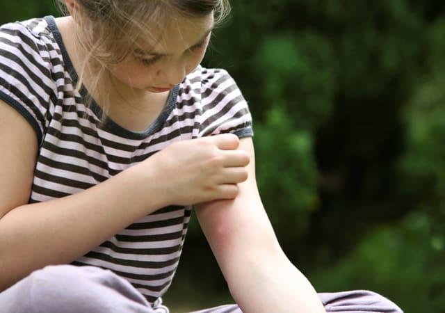 Remedios caseros para las mordeduras curativas del insecto