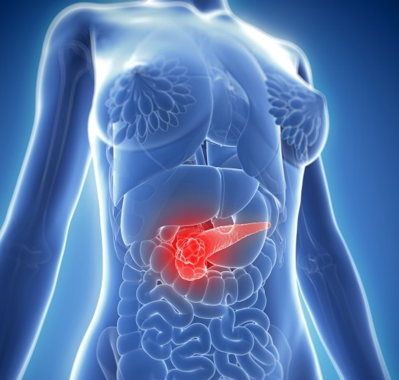 10 señales de advertencia del cáncer de páncreas que usted debe saber