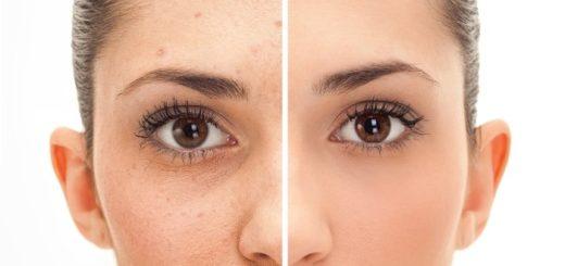 Deshacerse de los puntos oscuros del acné