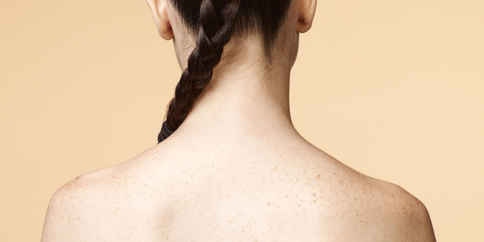Deshacerse del acné trasero