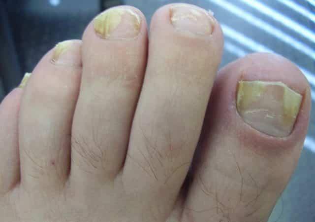 Remedios caseros para el hongo de la uña del dedo del pie