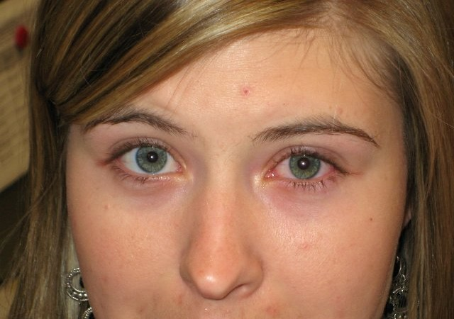 Remedios caseros para el ojo rosado