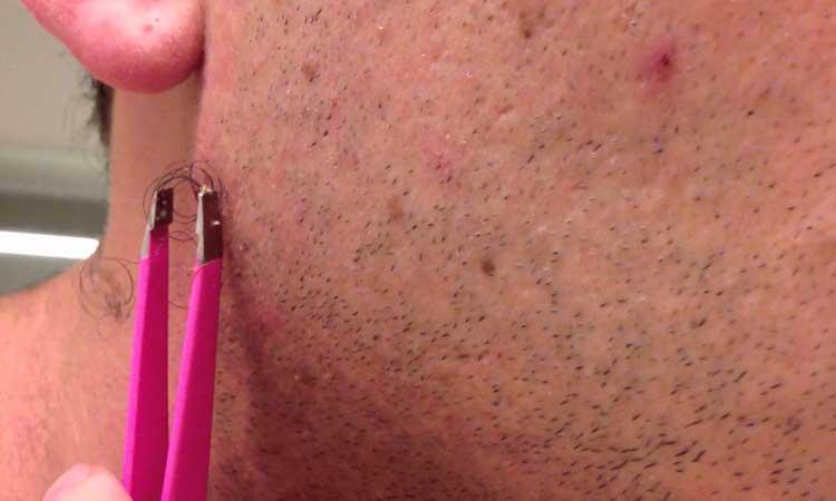 Remedios caseros para exponer el cabello encarnado