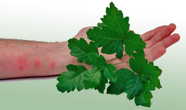 Remedios caseros para la hiedra venenosa