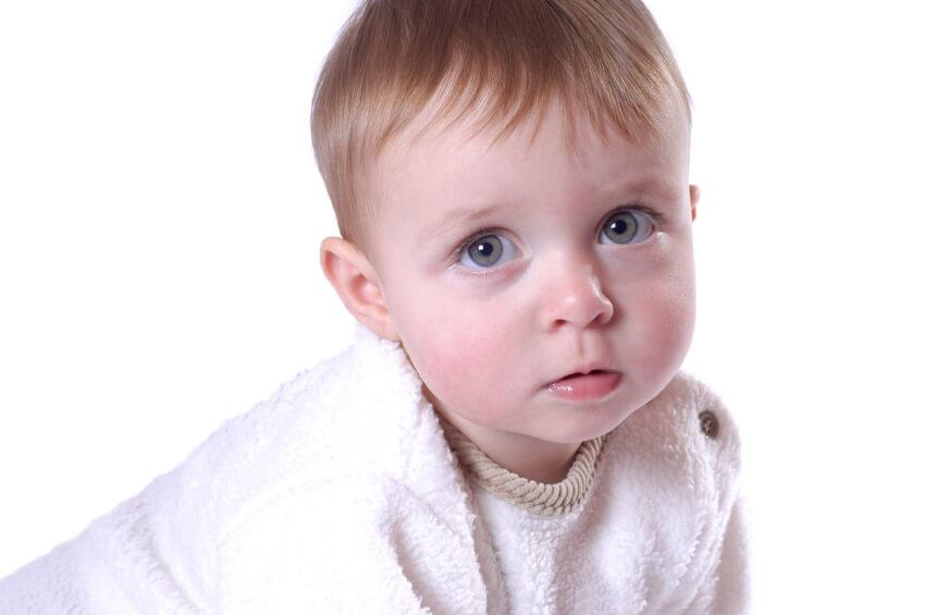 Hidrocefalia en los bebés