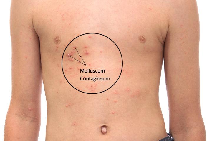 Remedio casero de Molluscum Contagiosum