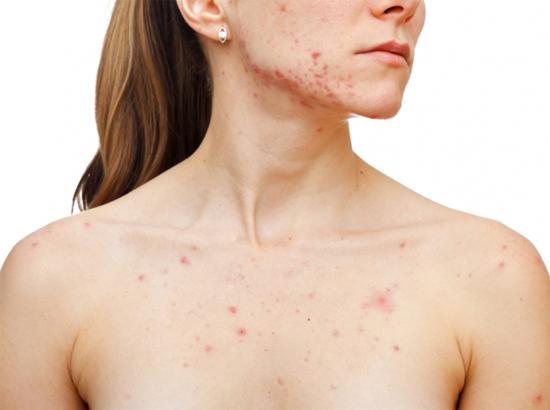 Remedios caseros para el acné cístico del pecho