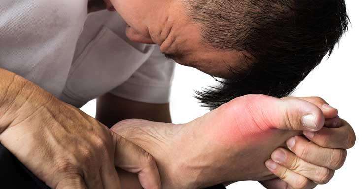 Remedios caseros para el dolor de la gota