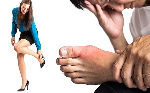 Remedios caseros para los pies hinchados