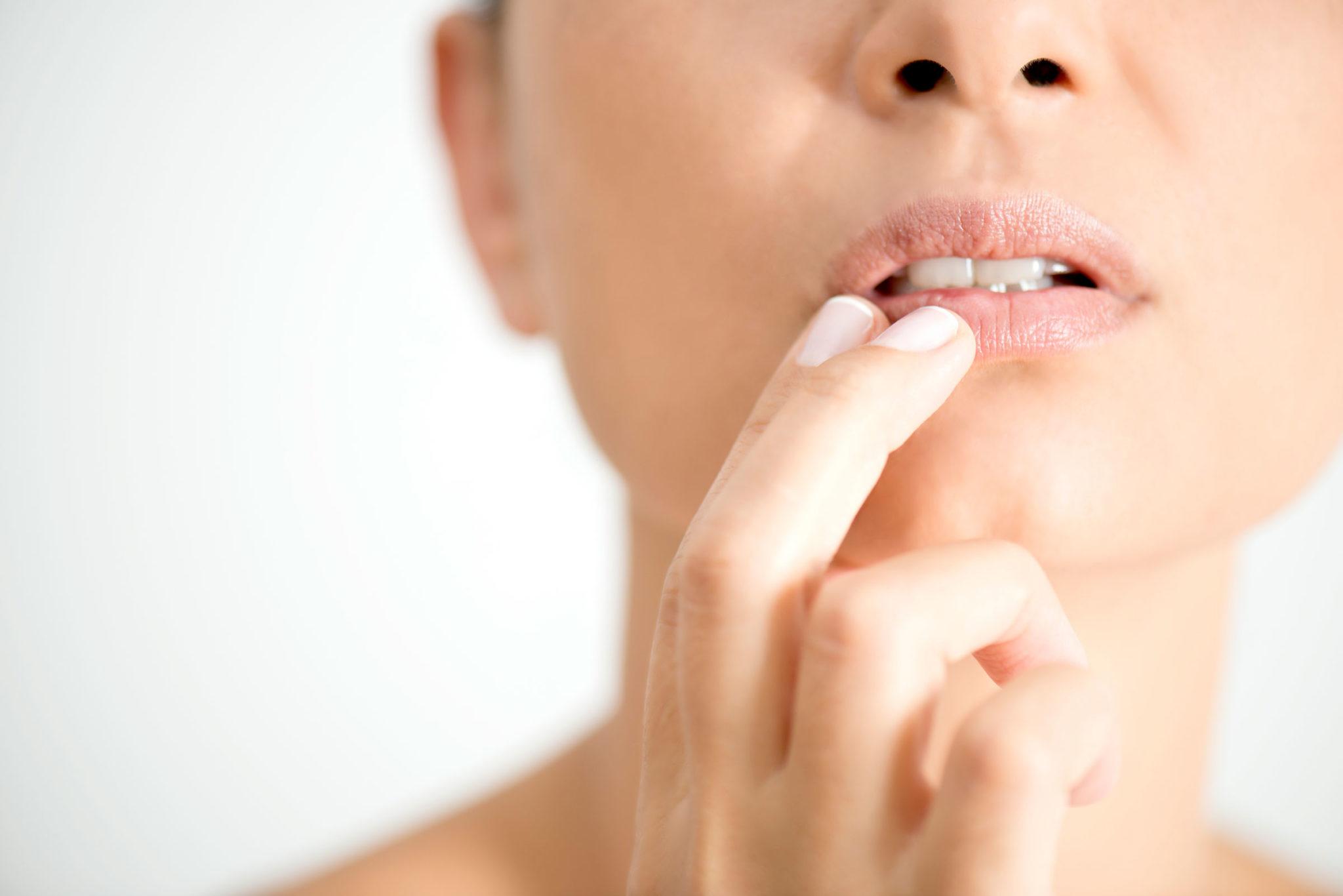 Cómo curar un herpes labial naturalmente