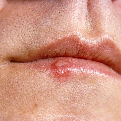 Herpes labial o herpes genital