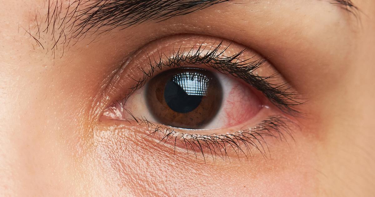 Remedios caseros para las infecciones del ojo