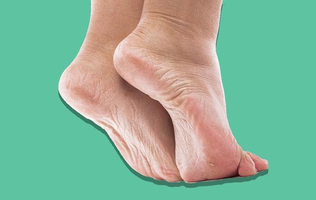 Los pies libres de callo funcionan realmente