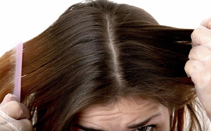 Aceite de oliva para caspa y cuero cabelludo seco