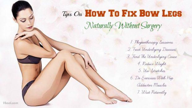 Fix Bow Legs