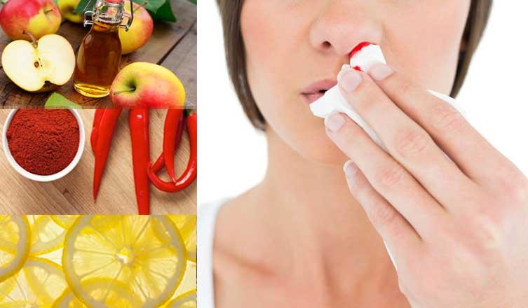 Hemorragias nasales