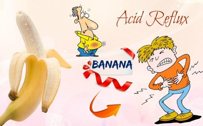 Plátano para ácido