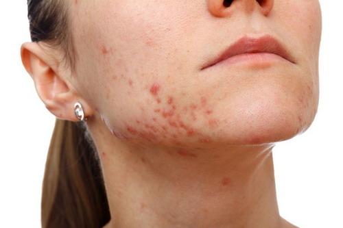 acné cístico