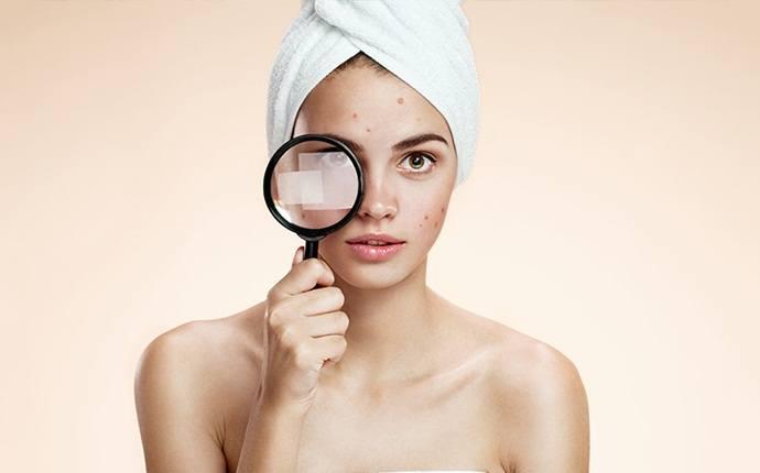 Tratar el acné