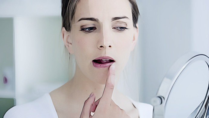 Cómo tratar los labios agrietados