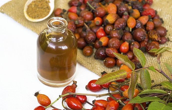 remedios caseros para el alivio del eccema