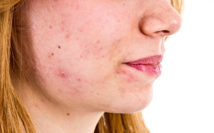 Acné hormonal: uno de los tipos de acné más difíciles de tratar