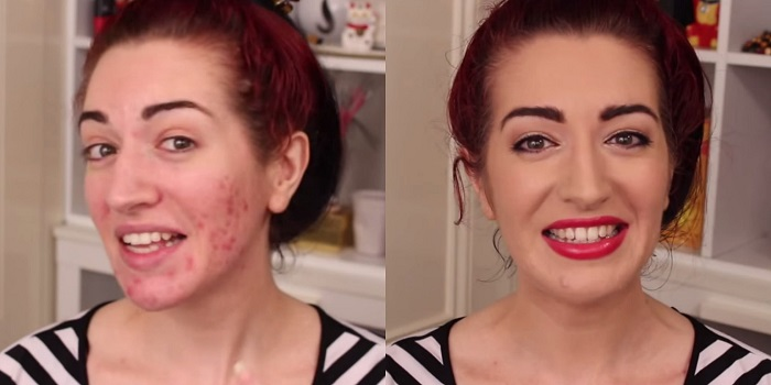 Maquillaje y acné - Cómo aplicar maquillaje en la piel propensa al acné