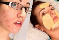 cáscara de plátano para el acné