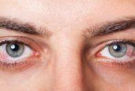 Problemas oculares