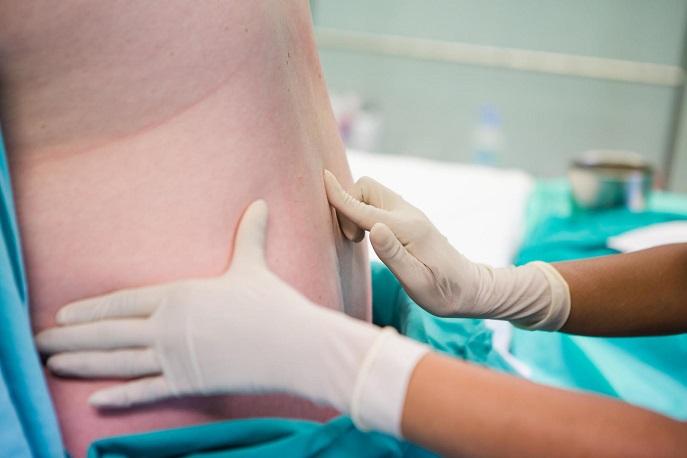 saber sobre epidurales