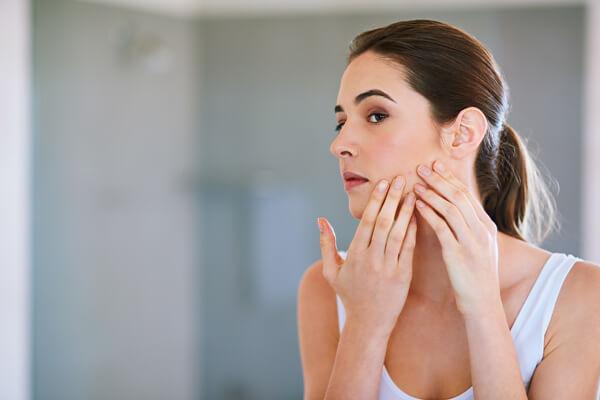 Mitos del acne